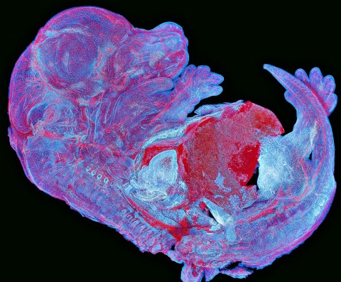 2004OEKG30Mar Asia-Pacific regional winner Howard Vindin - autofluorescence image of a mouse embryo.
